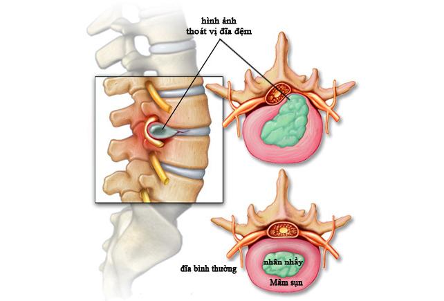 Điều trị đau vai gáy hiệu quả- Lời khuyên từ chuyên gia