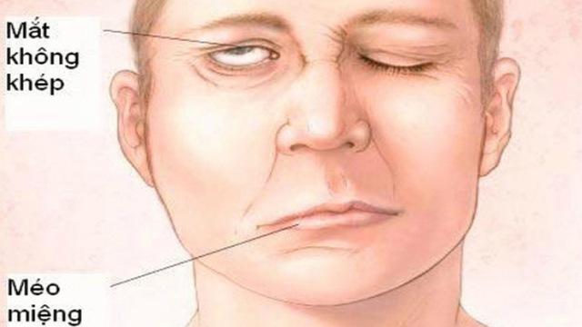 Di chứng viêm dây thần kinh ngoại biên số 7