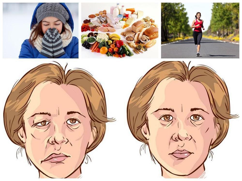Nhiễm lạnh đột ngột là nguyên nhân gây viêm dây thần kinh ngoại biên số 7