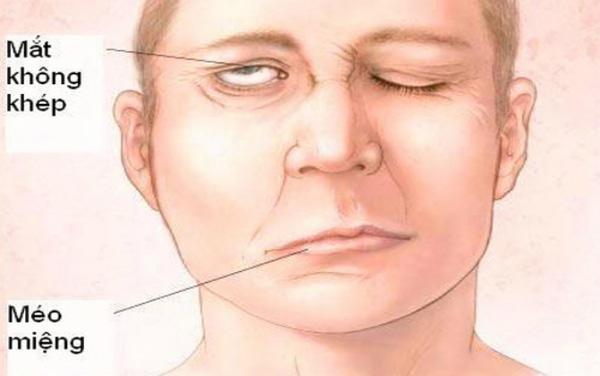 Viêm dây thần kinh ngoại biên số 7 là bệnh gì? Có nguy hiểm không?