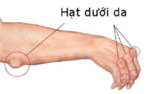 Hiện tượng nổi hạt dưới da ở người bị viêm khớp dạng thấp
